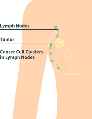 Breast Cancer Diagram