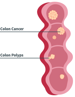 Colon Disease Diagram