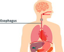 Esophageal-Disease-2