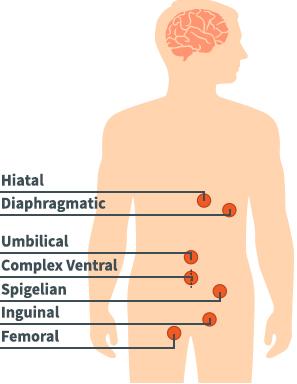 Hernia Diagram