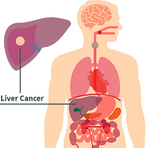 Liver Cancer Diagram