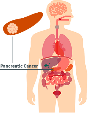 Pancreatic Cancer Diagram