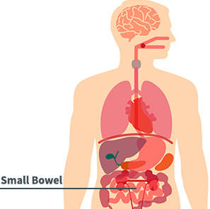 Small Bowel Cancer Diagram