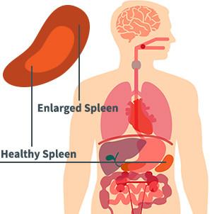 Spleen Disease