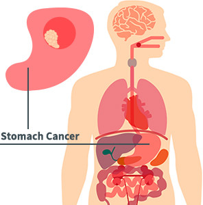 Stomach Cancer Diagram