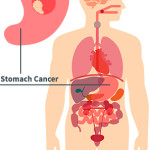 Stomach Cancer Physician